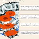 Serotonin Circuit
