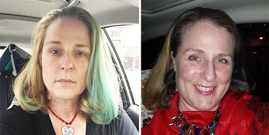 Julie-Fast-bipolar-mania-eyes